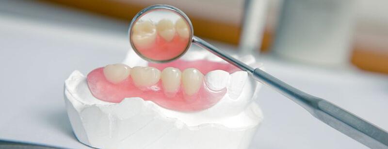 Zahnersatz - CE Dental