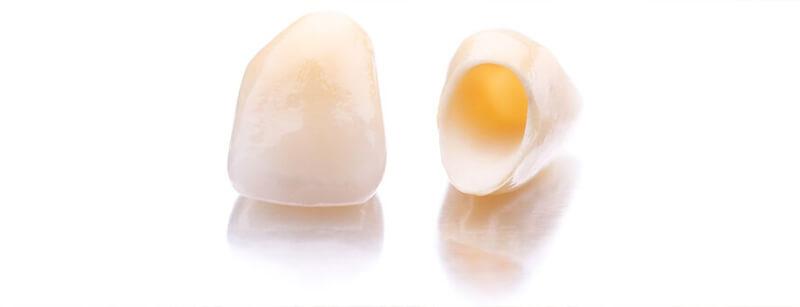Zahnkrone - CE Dental