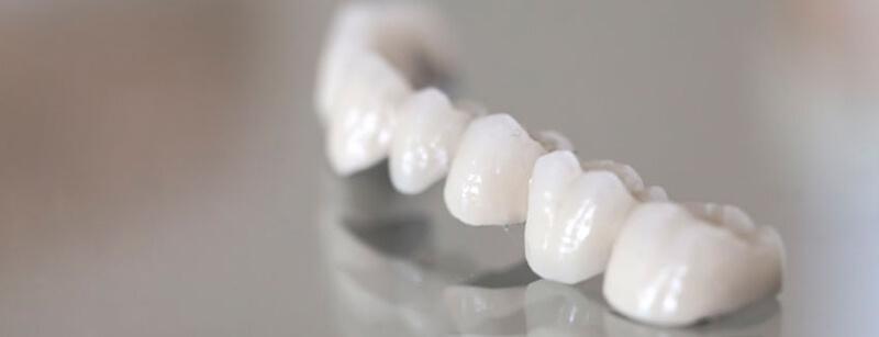 Zahnbrücke - CE Dental