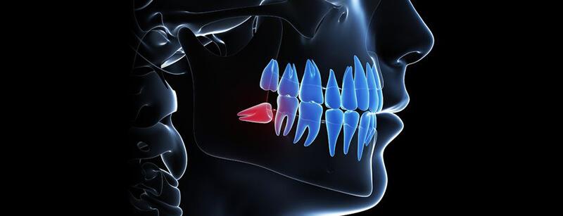 Weisheitszahnentfernung - CE Dental