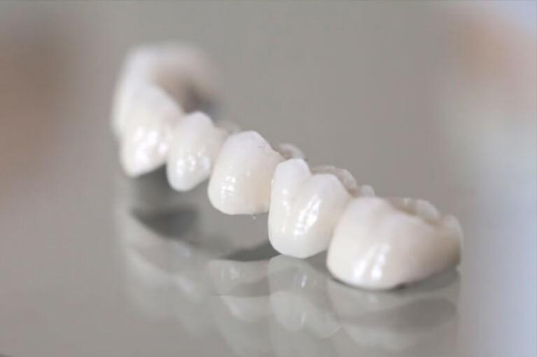 Zahnbrücke Behandlungen